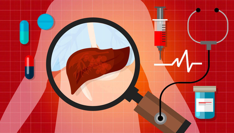 salud-hepática
